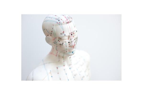 Akupunktur im Kinderwunsch