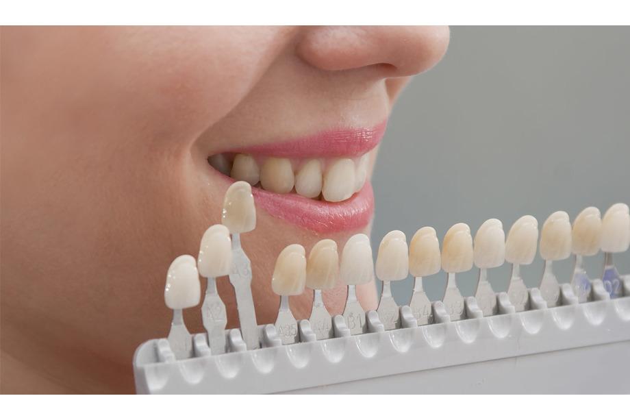 blanqueamiento dental en Mataró