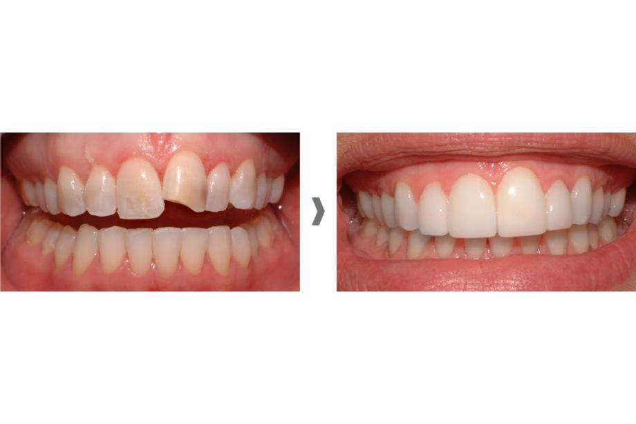 Carillas dentales sin rebajar el diente en Mataró