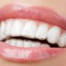 férula ortodoncia invisible