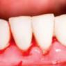 urgencias dentales en Mataró