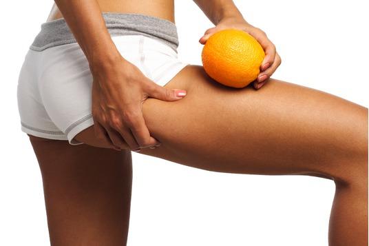 Celulitis, Piel de Naranja, Flacidez,