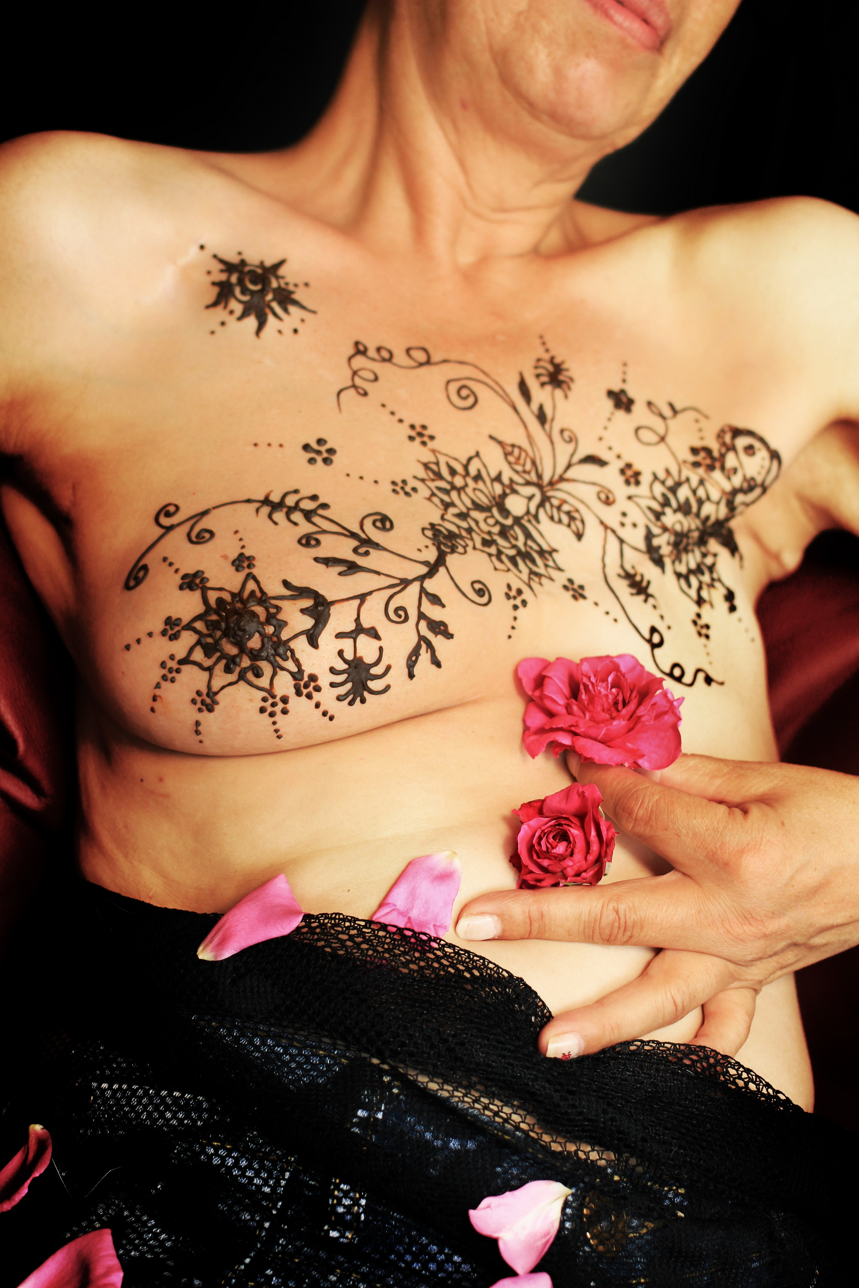 Mastektomie Rose