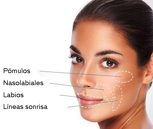 Acido Hialuronico Deep + Botox
