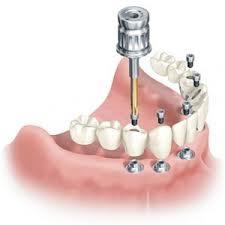 Implantologia dental