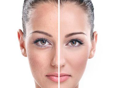 Peeling facial despigmentante con A-H-A hidroxiácidos más vitaminas
