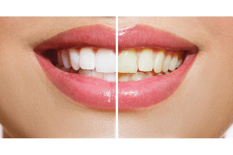 blanqueamiento dental aluche