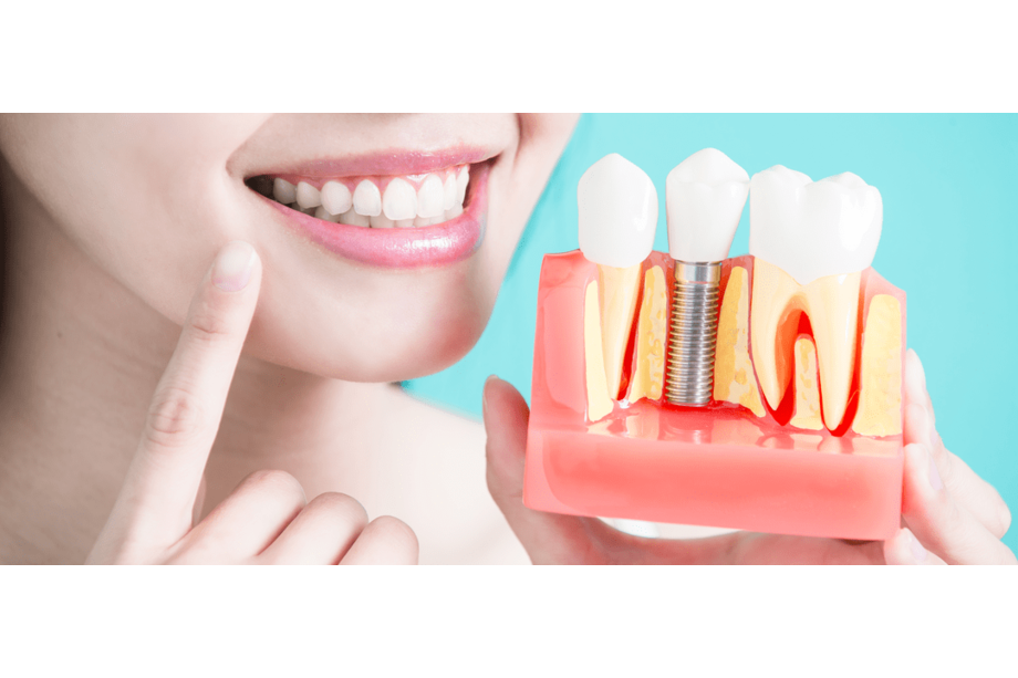 implantes dentales aluche