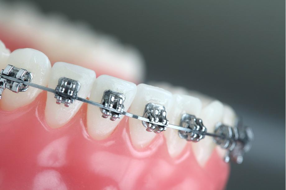 ortodoncia rápida en madrid