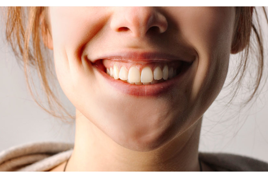 periodontitis aluche