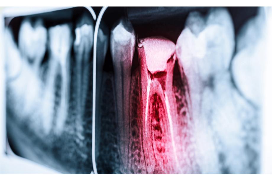 endodoncia en aluche