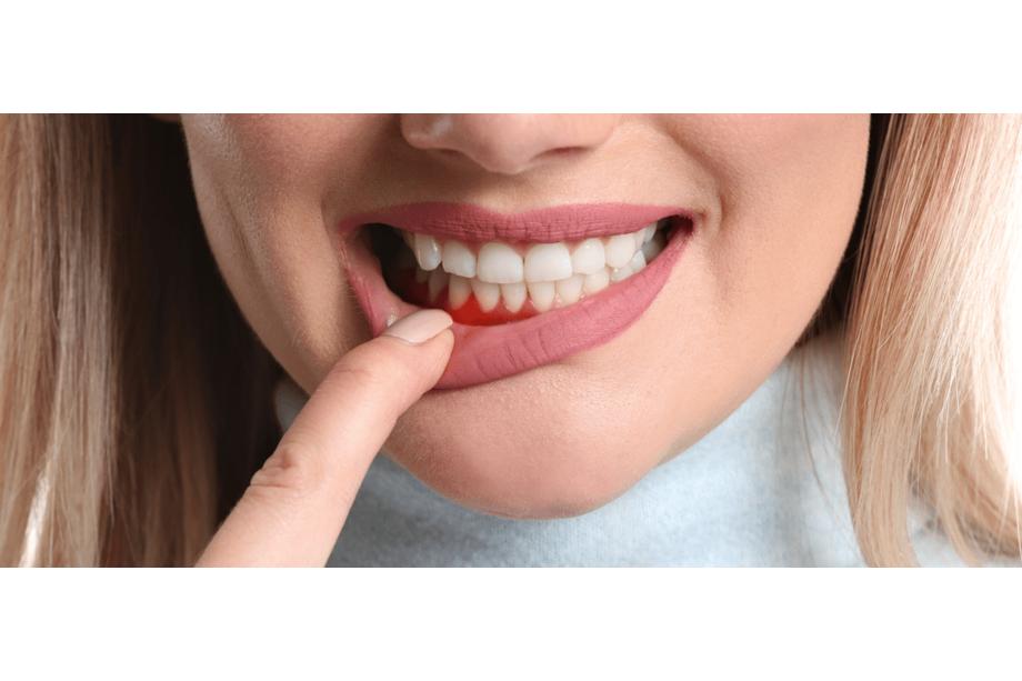 periodoncia aluche