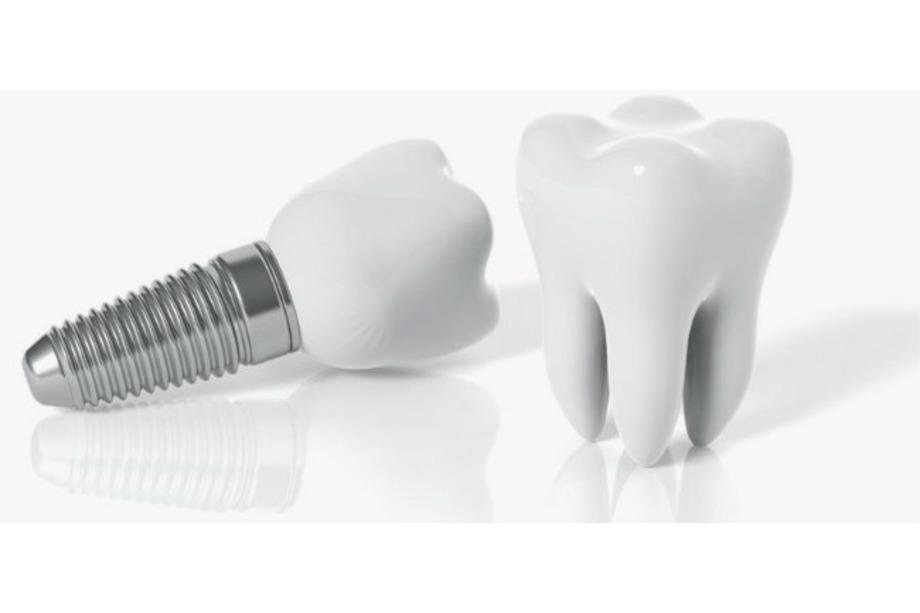 Implantes dentales en Aluche