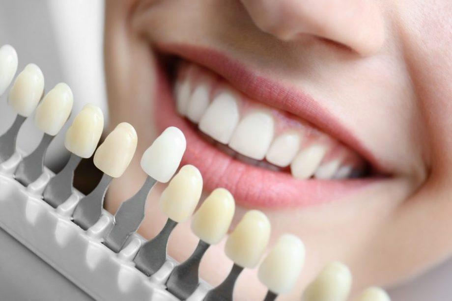 carillas dentales aluche