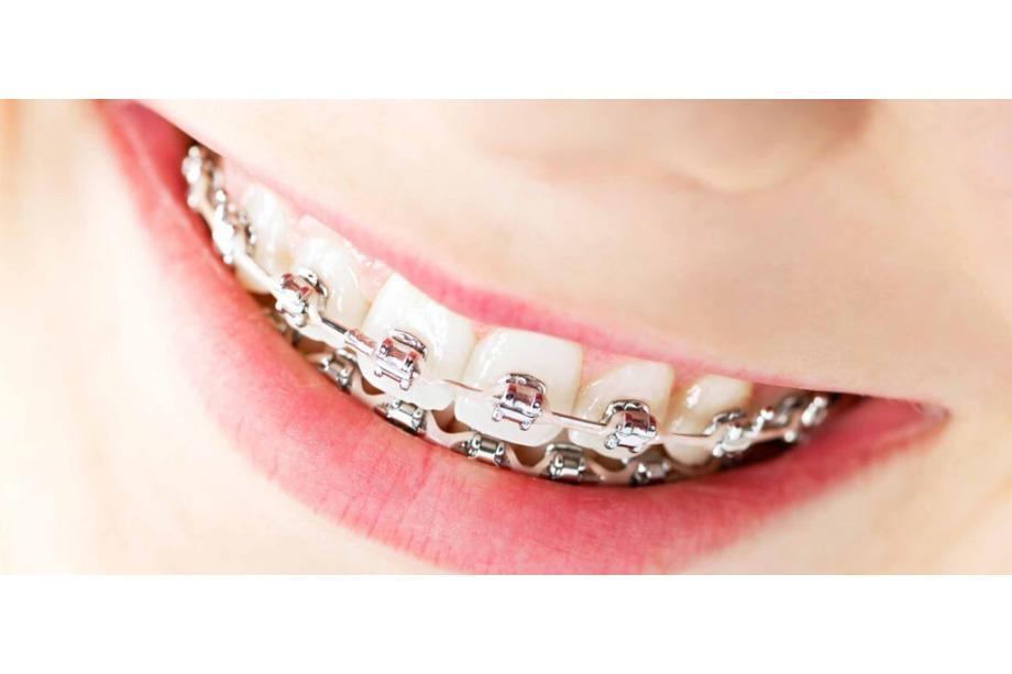ortodoncia aluche