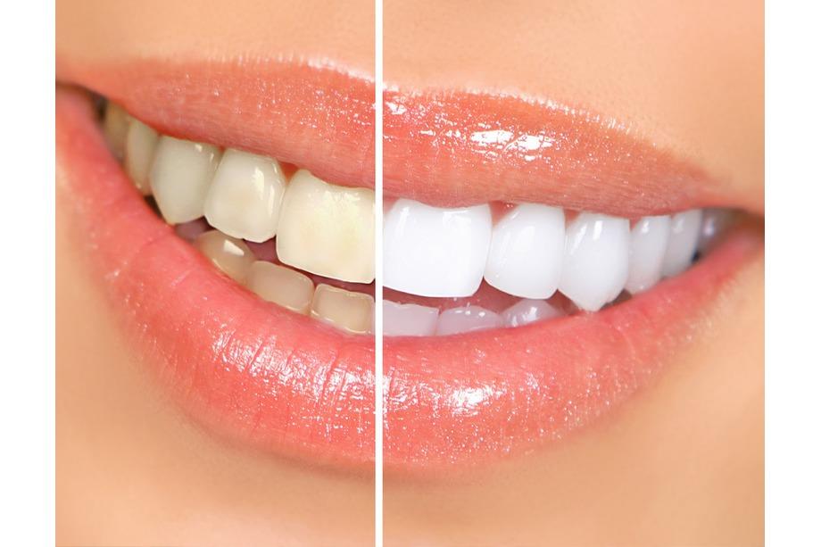 blanqueo dental aluche
