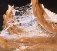 Myofascial Web