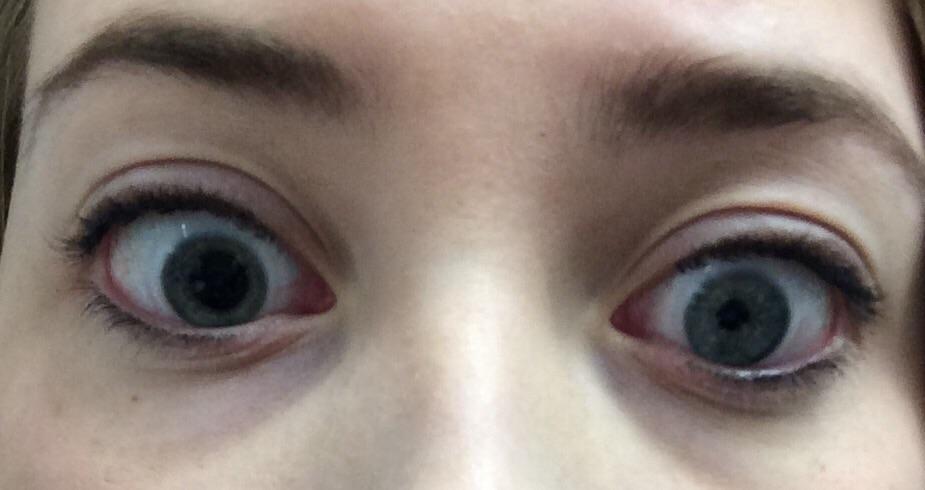 aufgerissene Augen